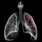 От рака легких