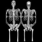 От рака кости