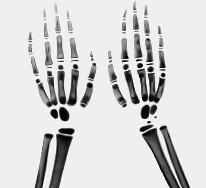 От рака костей так же